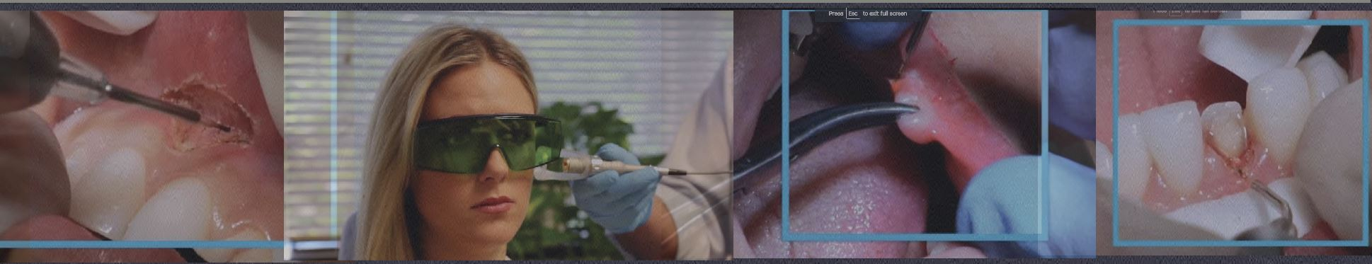 Incorporating Dental Laser in Your Practice. The Basic Workshop. Banner Image